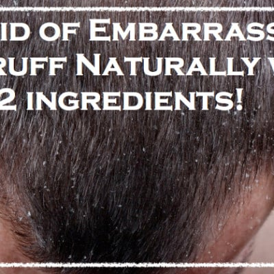 Get Rid of Dandruff Naturally With 2 Ingredients!