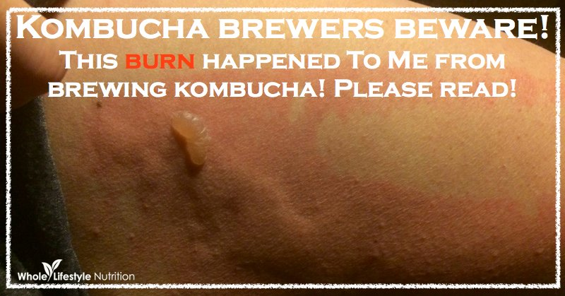 Kombucha Brewers Beware! | WholeLifestyleNutrition.com