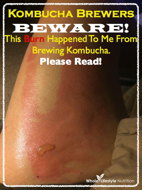 Kombucha Brewers Beware!   WholeLifestyleNutrition.com