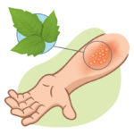 Naturally Get Rid of Poison Ivy, Oak and Sumac | WholeLifestyleNutrition.com