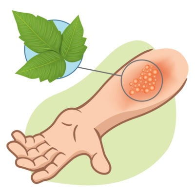 Naturally Get Rid of Poison Ivy, Oak and Sumac